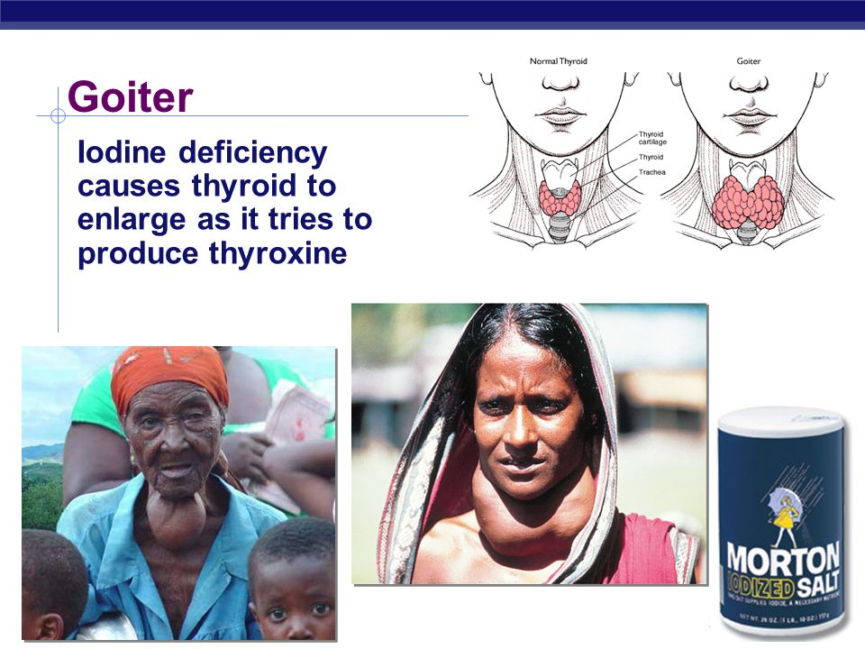 Goiter Iodine deficiency causes thyroid to enlarge as it tries to produce thyroxine 2004-2005