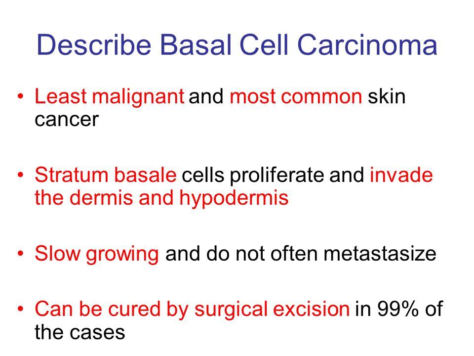 Describe Basal Cell Carcinoma