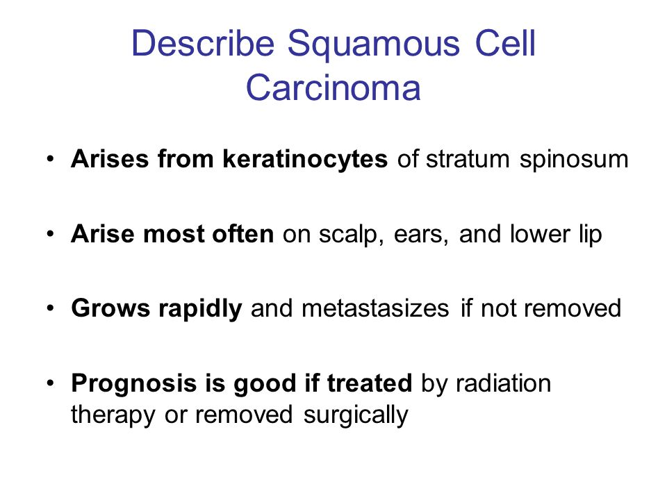 Describe Squamous Cell Carcinoma
