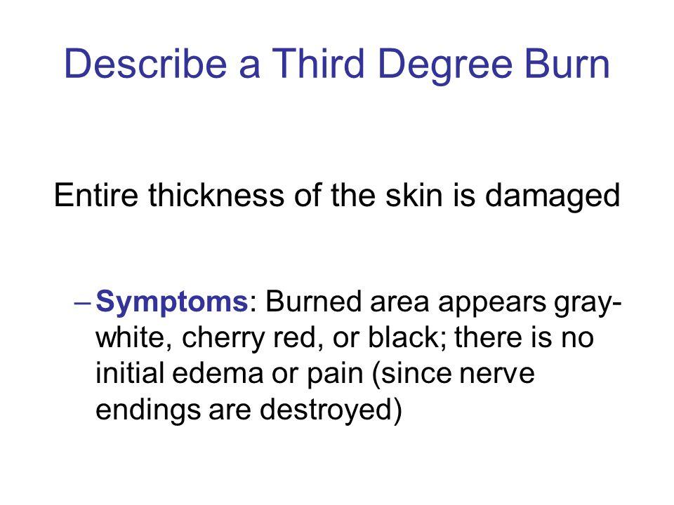 Describe a Third Degree Burn
