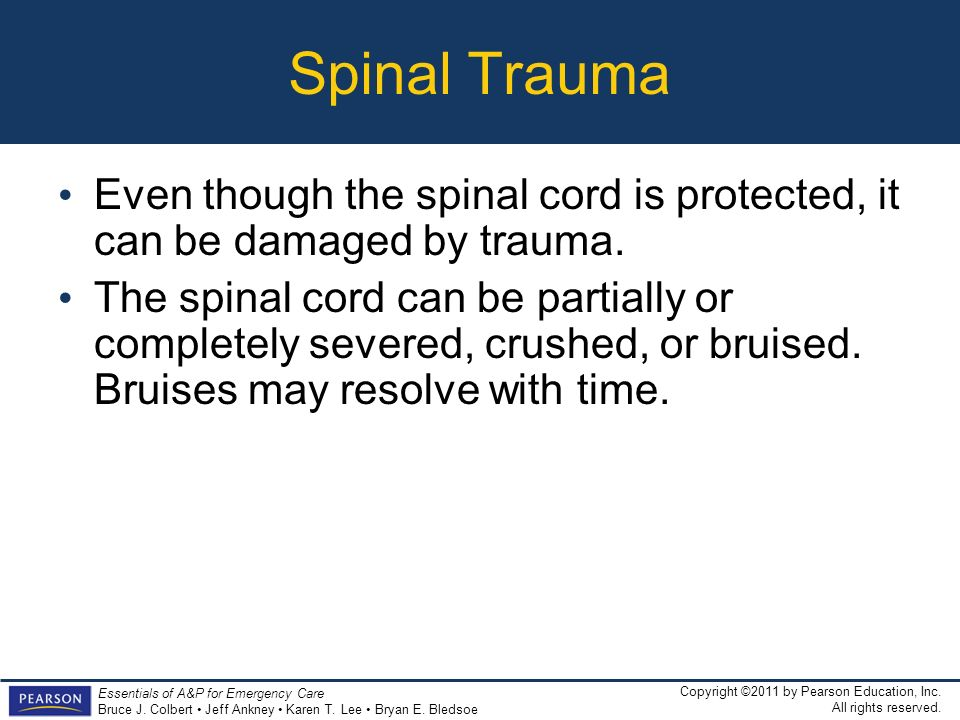Spinal Trauma Even though the spinal cord is protected, it can be damaged by trauma.