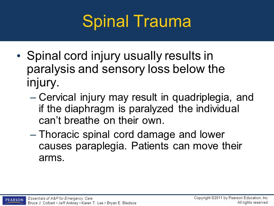 Spinal Trauma Spinal cord injury usually results in paralysis and sensory loss below the injury.