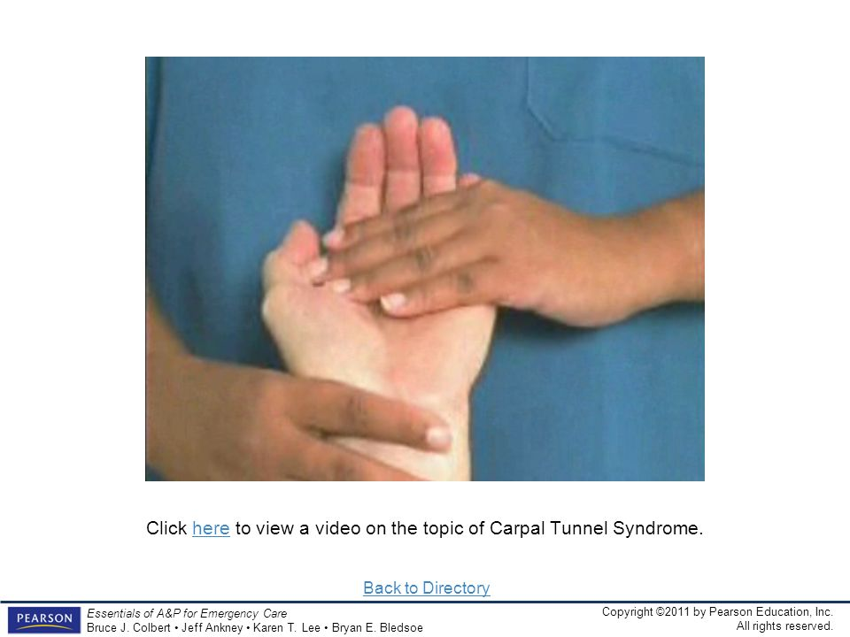 Click here to view a video on the topic of Carpal Tunnel Syndrome.