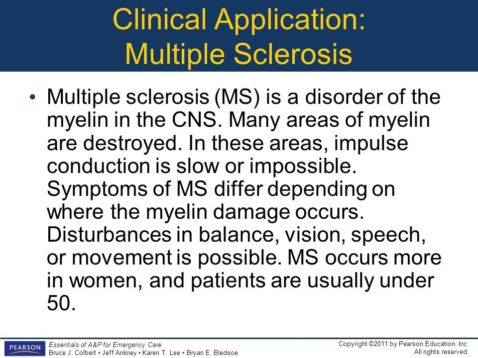 Clinical Application: Multiple Sclerosis