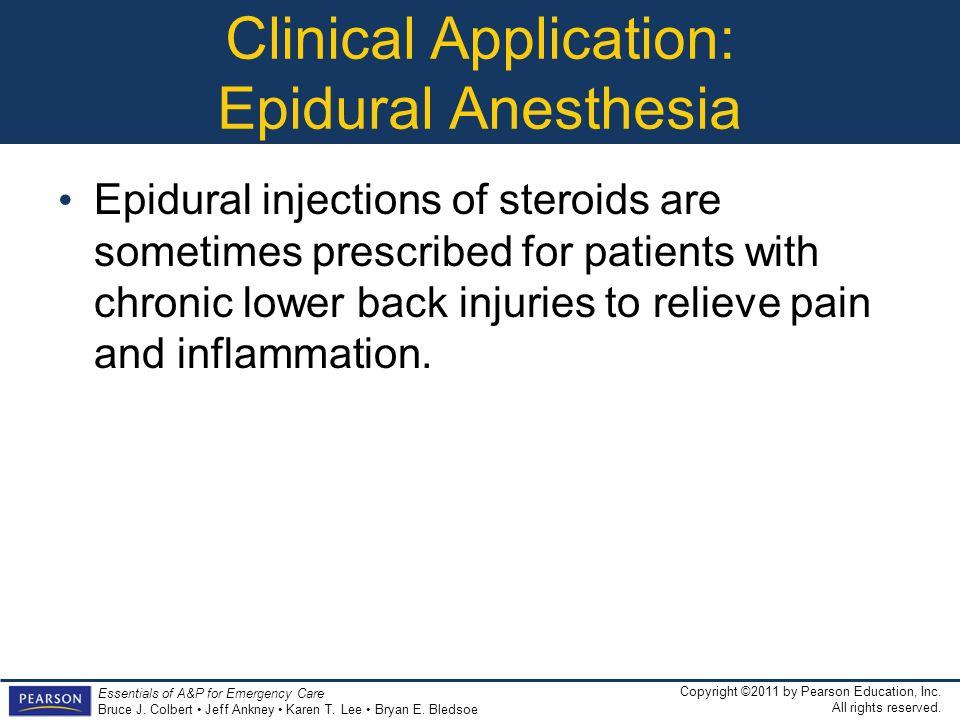 Clinical Application: Epidural Anesthesia