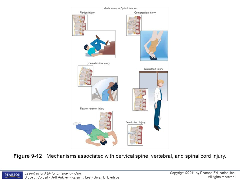 Figure 9-12 Mechanisms associated with cervical spine, vertebral, and spinal cord injury.