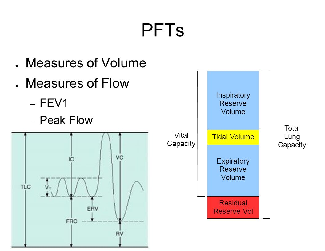 PFTs Measures of Volume Measures of Flow FEV1 Peak Flow Inspiratory