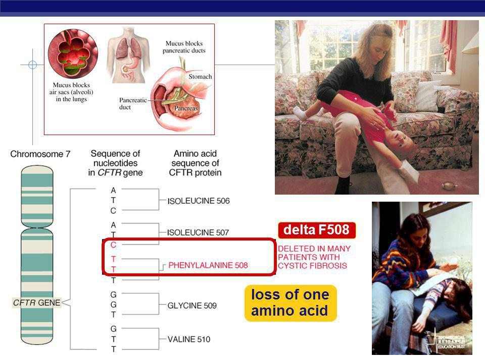 delta F508 loss of one amino acid