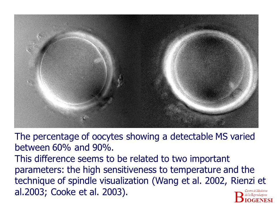 The percentage of oocytes showing a detectable MS varied between 60% and 90%.