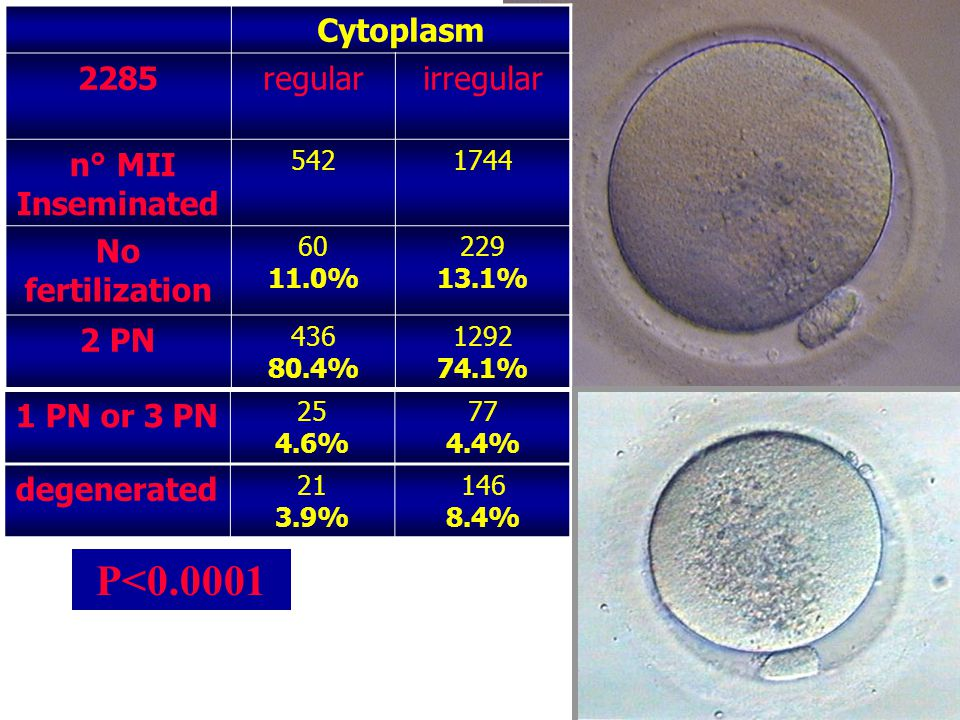 P<0.0001 Cytoplasm 2285 regular irregular n° MII Inseminated