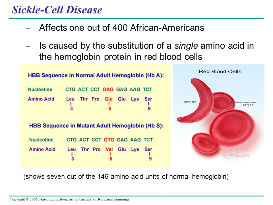 Sickle-Cell Disease Affects one out of 400 African-Americans