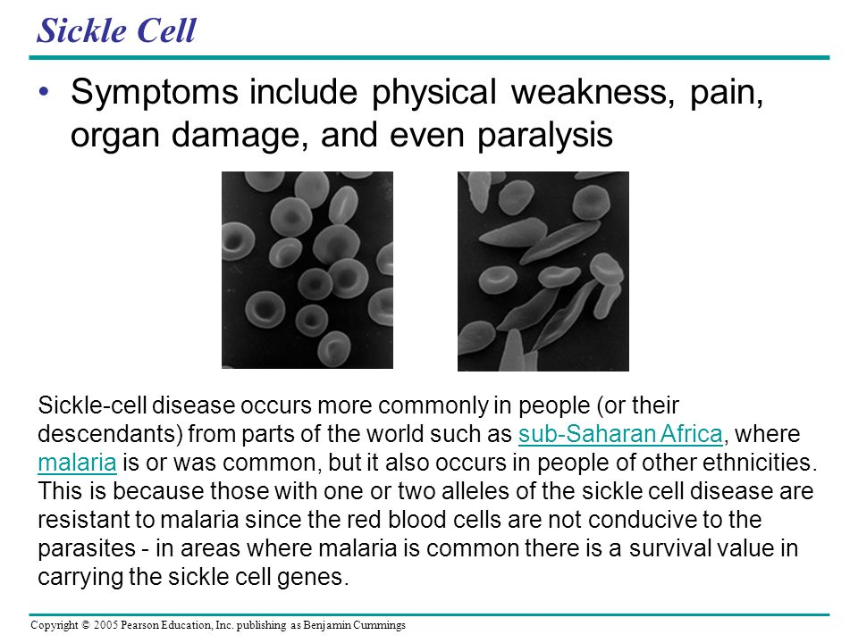 Sickle Cell Symptoms include physical weakness, pain, organ damage, and even paralysis.