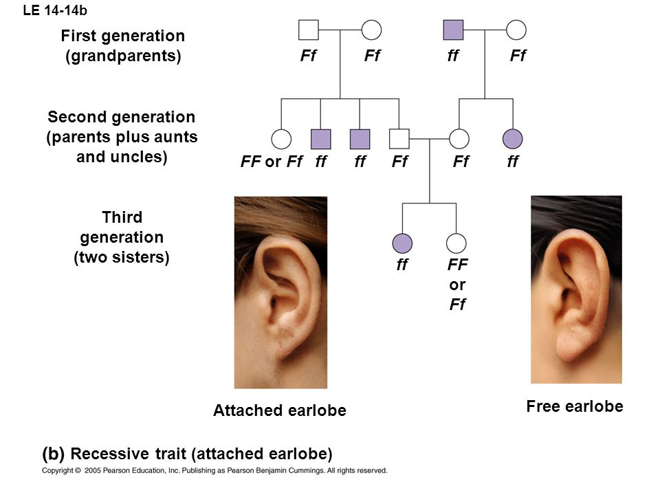 Recessive trait (attached earlobe)