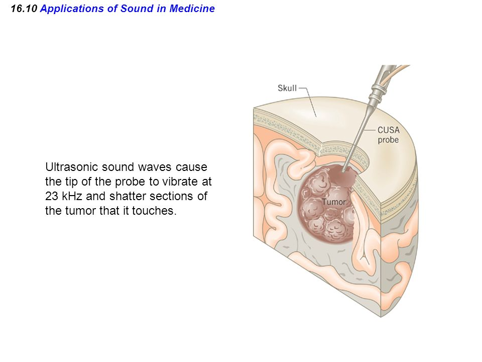 16.10 Applications of Sound in Medicine