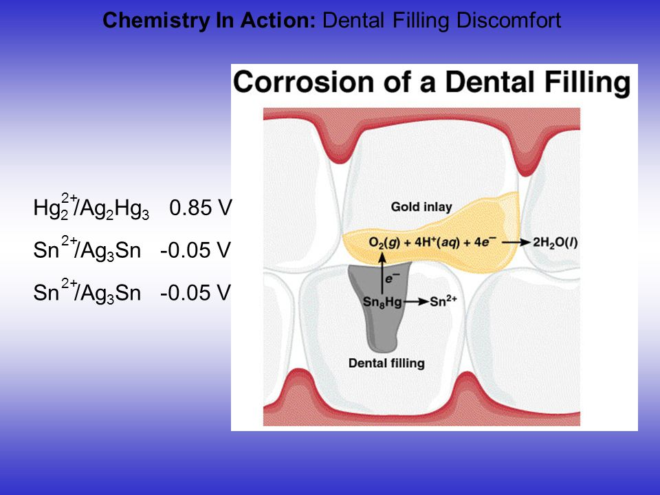 Chemistry In Action: Dental Filling Discomfort