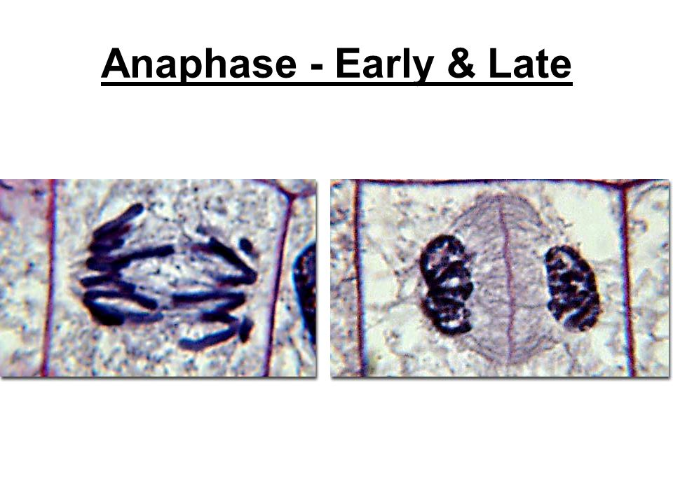 Anaphase - Early & Late