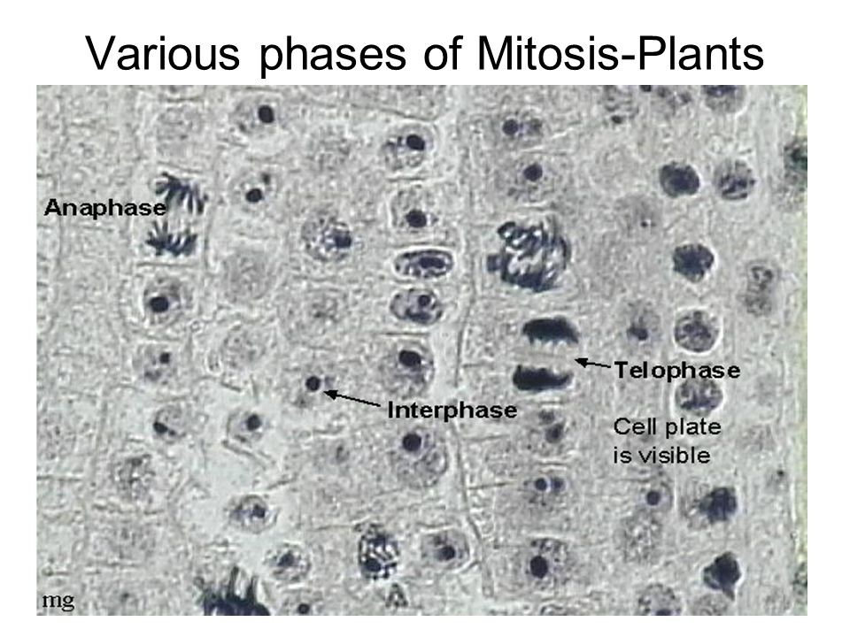 Various phases of Mitosis-Plants