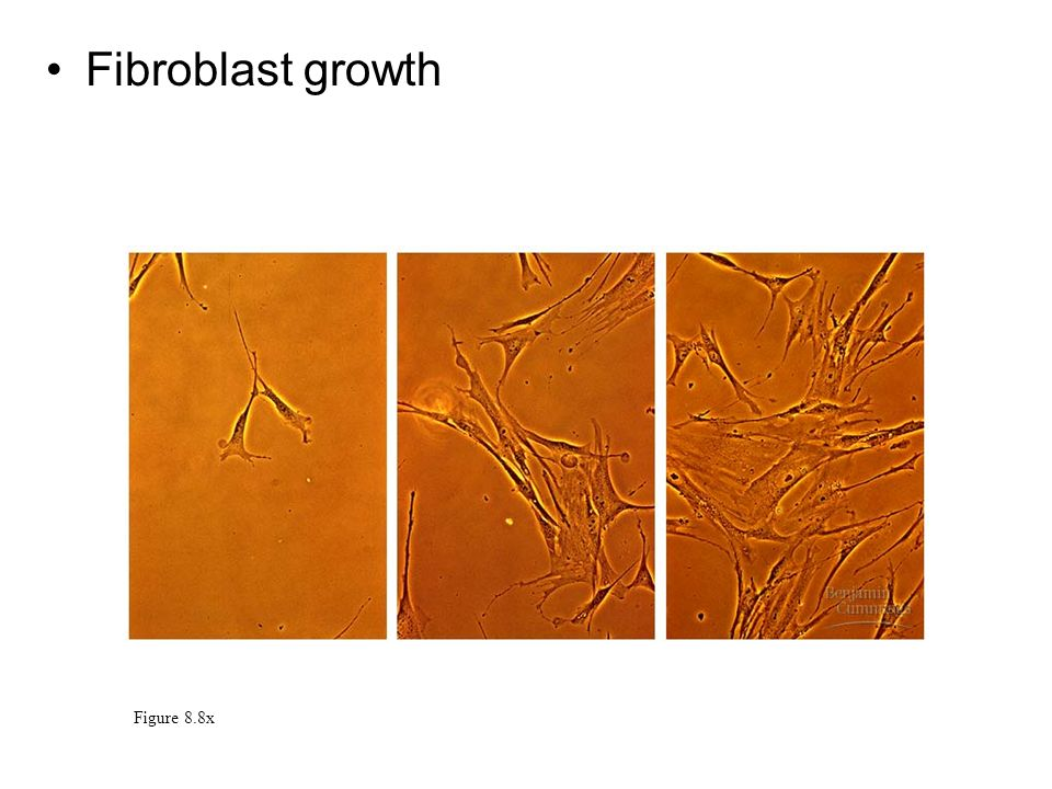 Fibroblast growth Figure 8.8x