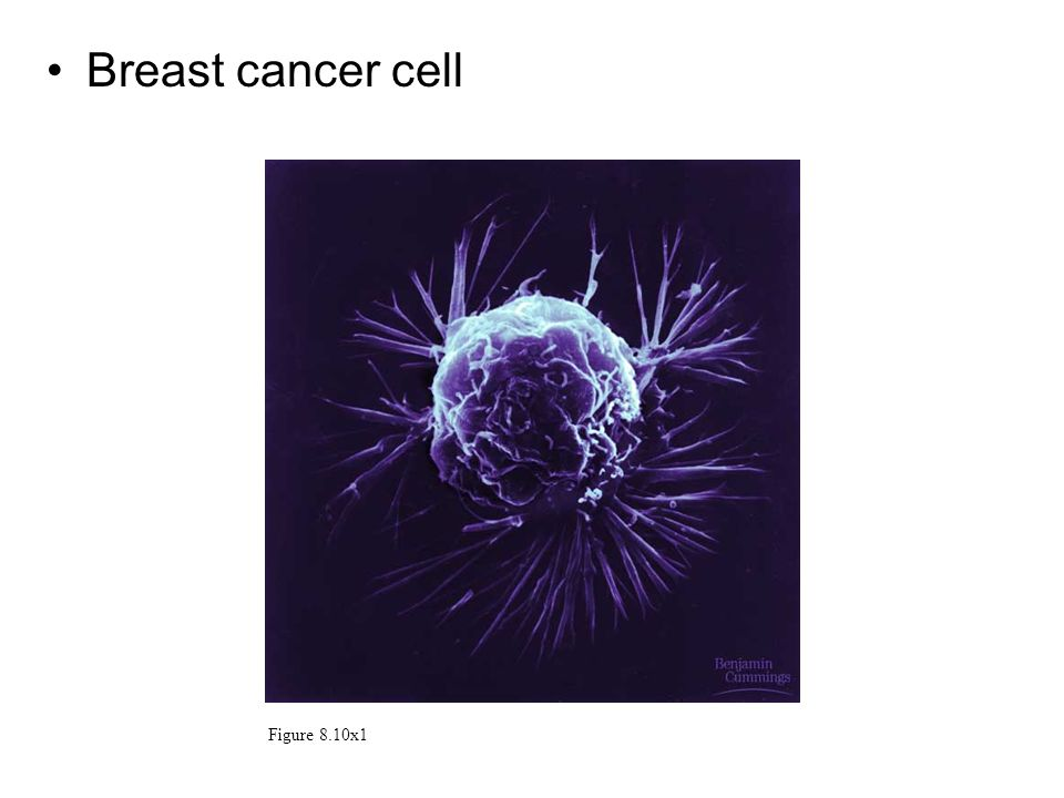 Breast cancer cell Figure 8.10x1