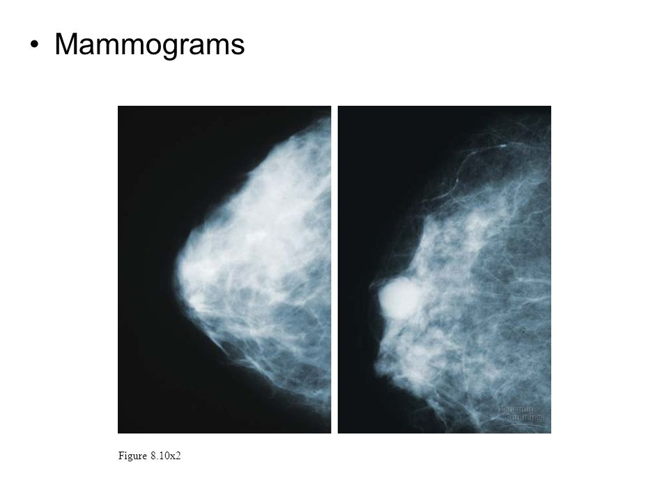 Mammograms Figure 8.10x2