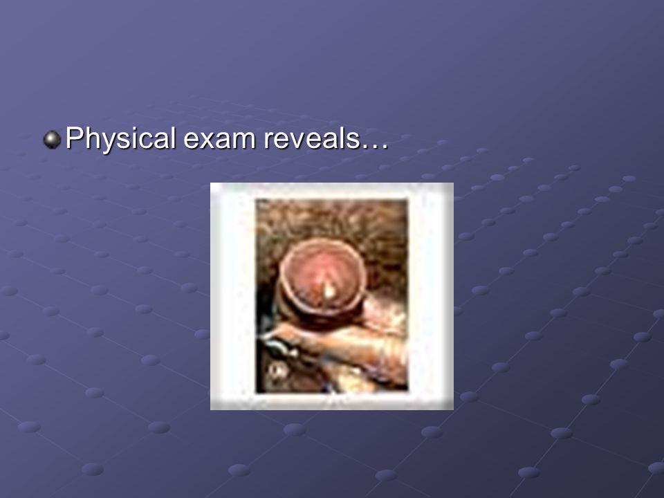 Physical exam reveals…