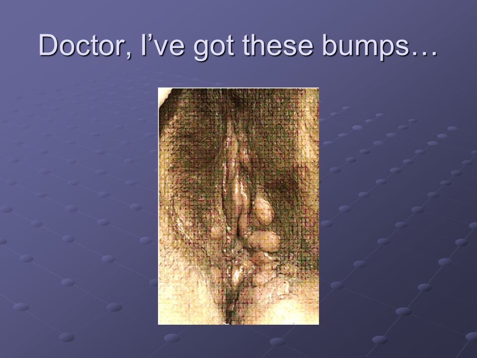 Doctor, I've got these bumps…