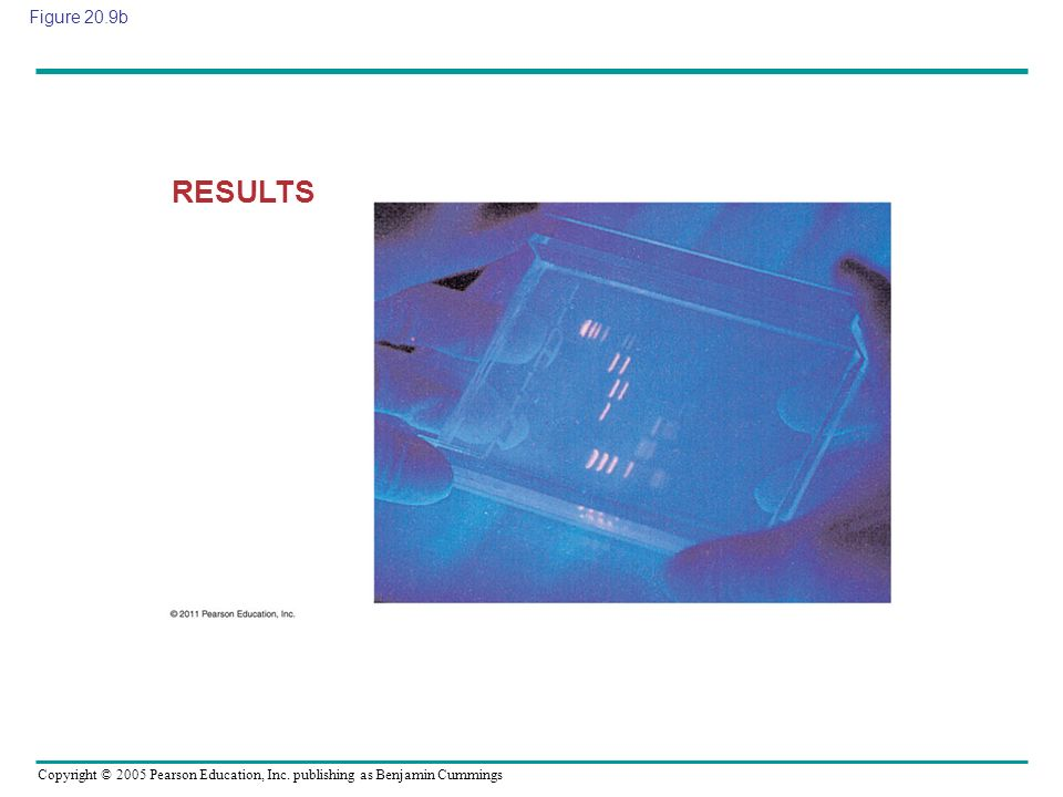 Figure 20.9b RESULTS Figure 20.9 Research Method: Gel Electrophoresis