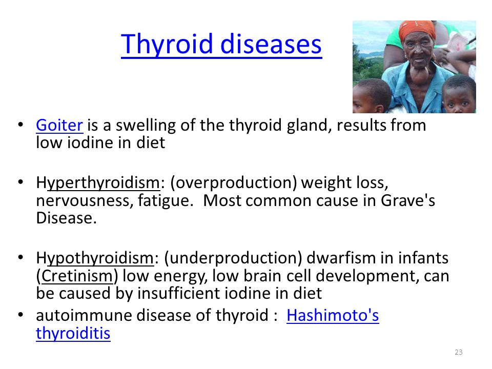 Thyroid diseases Goiter is a swelling of the thyroid gland, results from low iodine in diet.