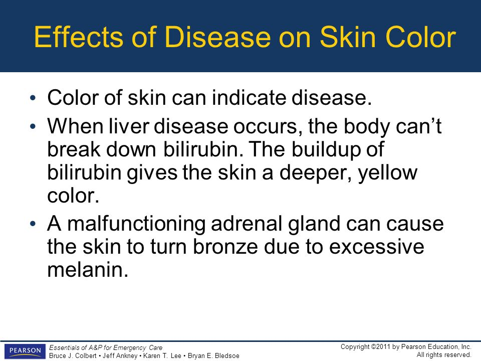 Effects of Disease on Skin Color