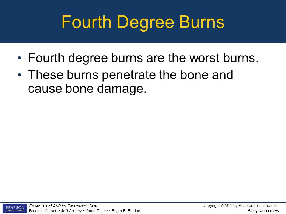 Fourth Degree Burns Fourth degree burns are the worst burns.