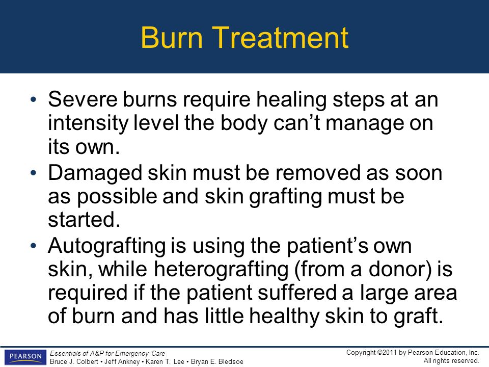 Burn Treatment Severe burns require healing steps at an intensity level the body can't manage on its own.