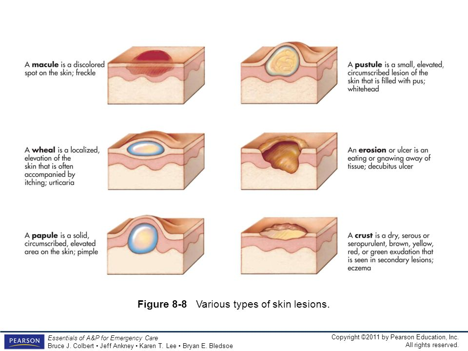 Figure 8-8 Various types of skin lesions.