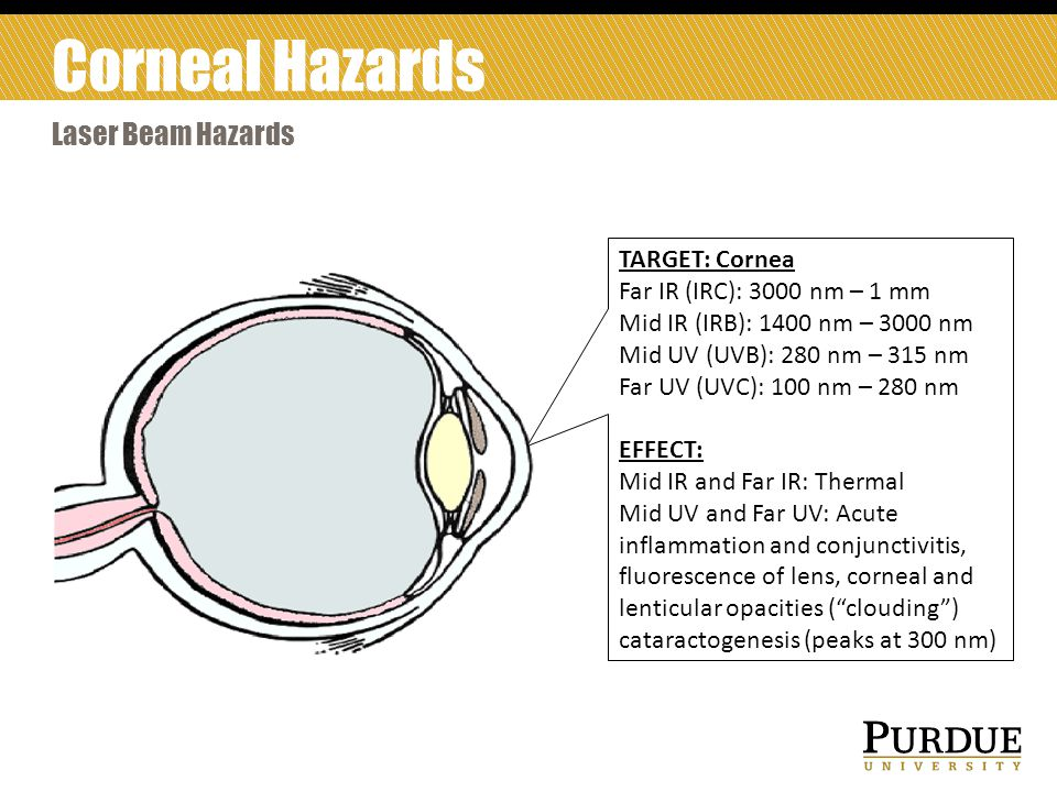 Corneal Hazards Laser Beam Hazards TARGET: Cornea