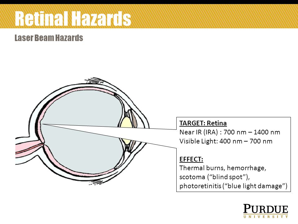 Retinal Hazards Laser Beam Hazards TARGET: Retina