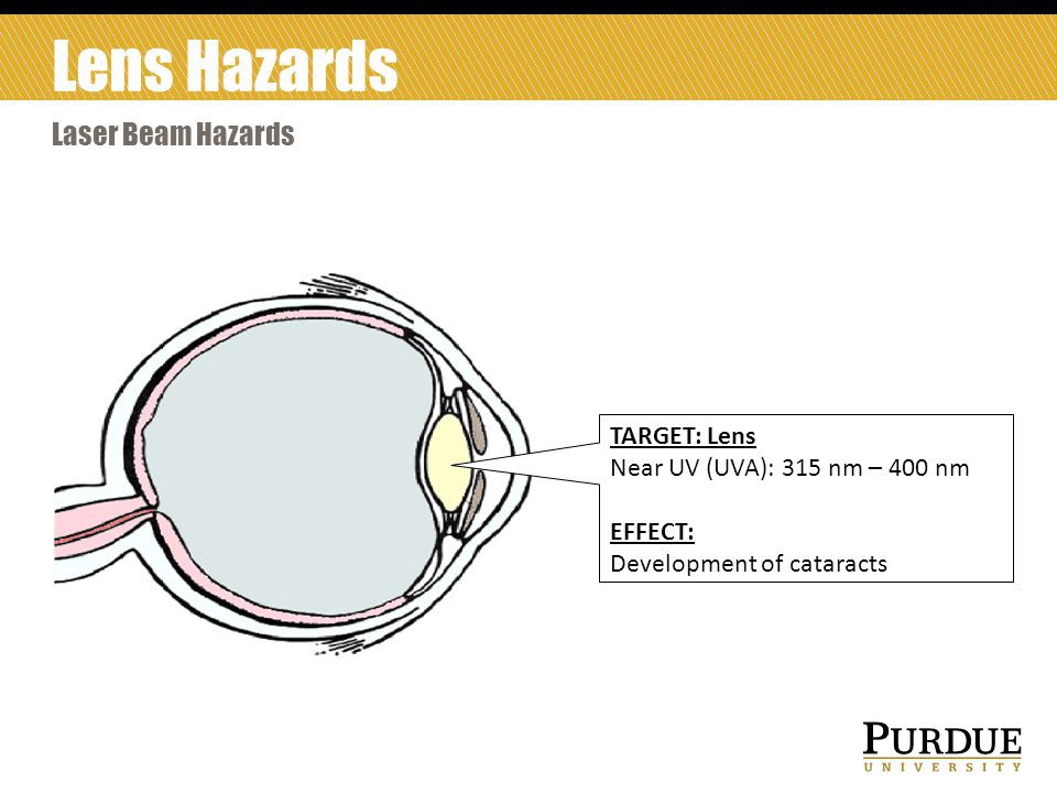 Lens Hazards Laser Beam Hazards TARGET: Lens