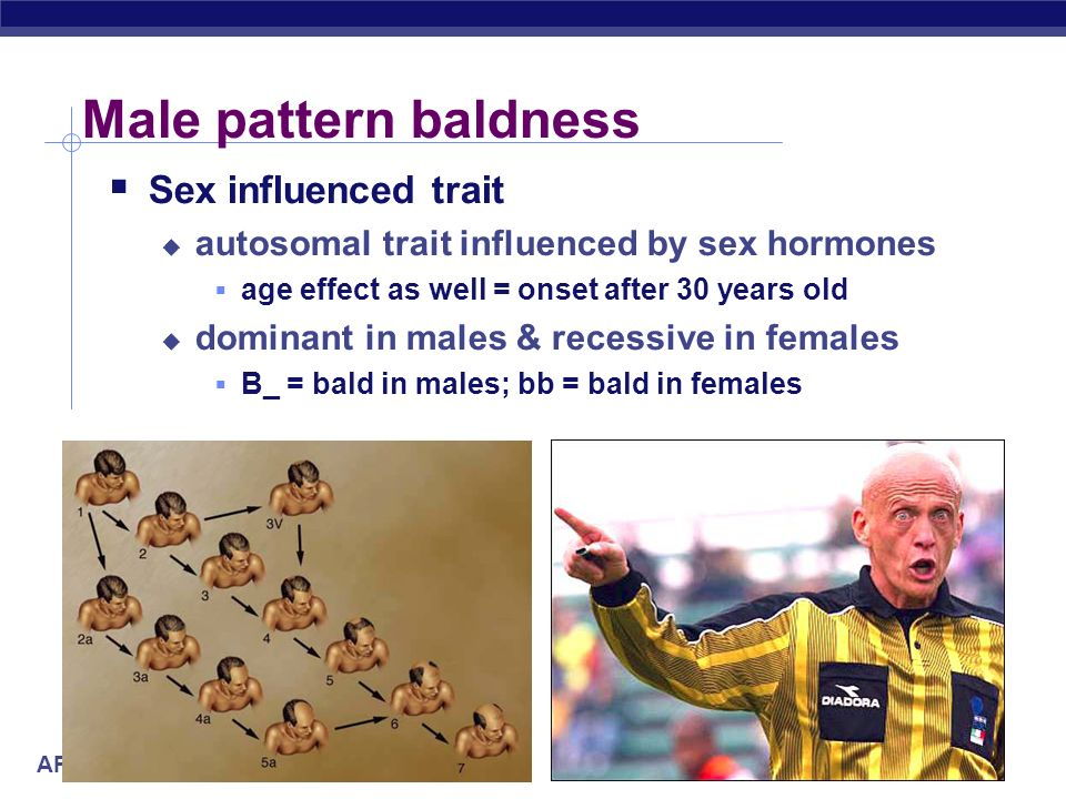 Male pattern baldness Sex influenced trait