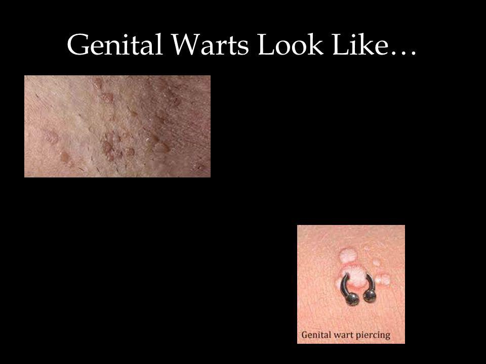 Genital Warts Look Like…