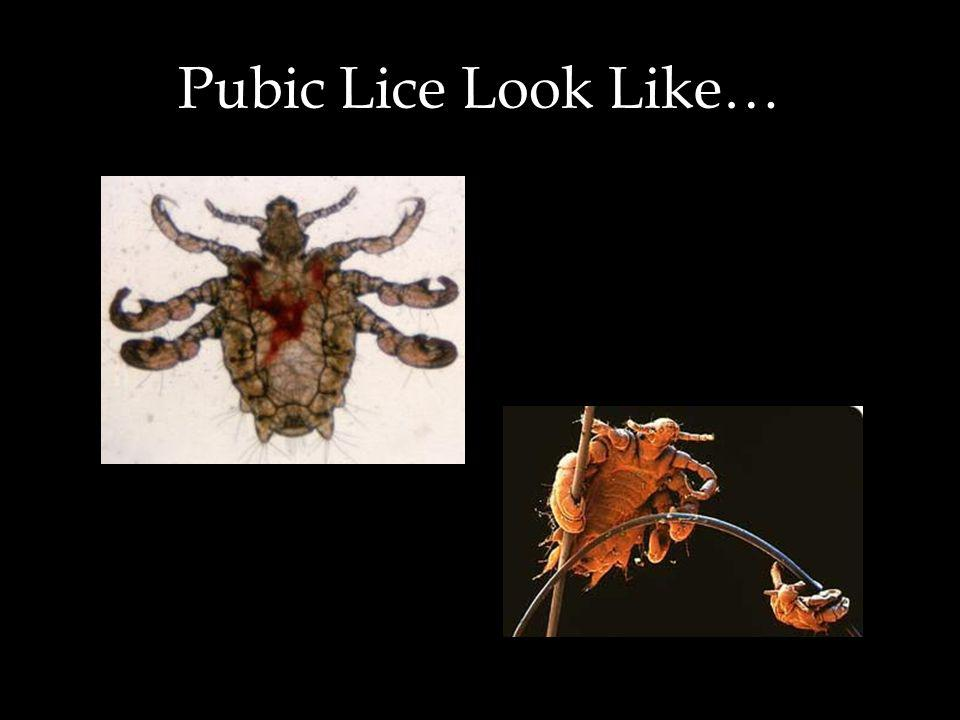 Pubic Lice Look Like…