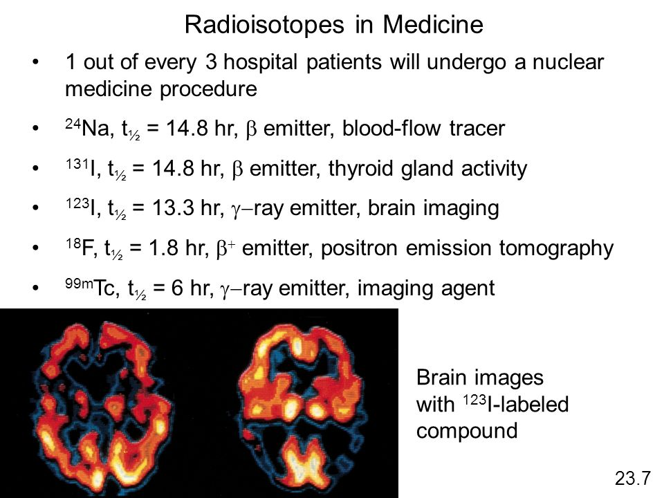 Radioisotopes in Medicine
