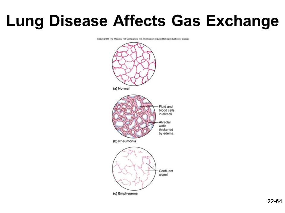 Lung Disease Affects Gas Exchange
