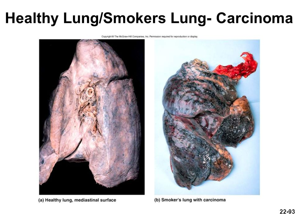 Healthy Lung/Smokers Lung- Carcinoma