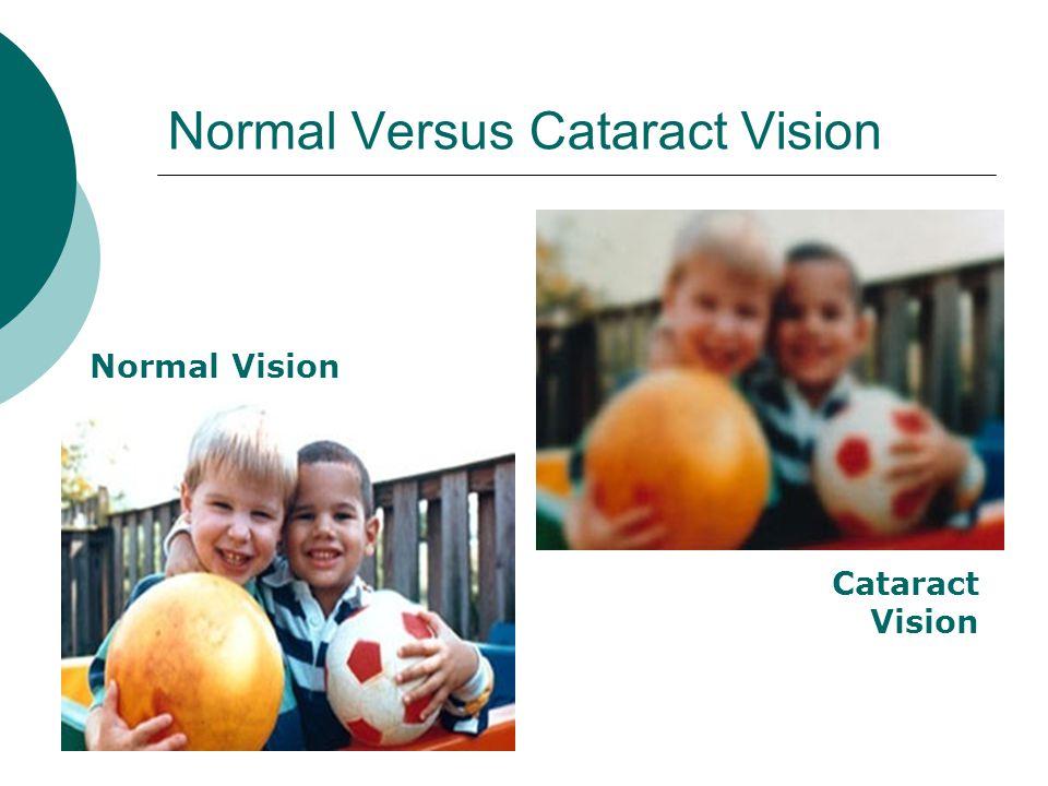Normal Versus Cataract Vision