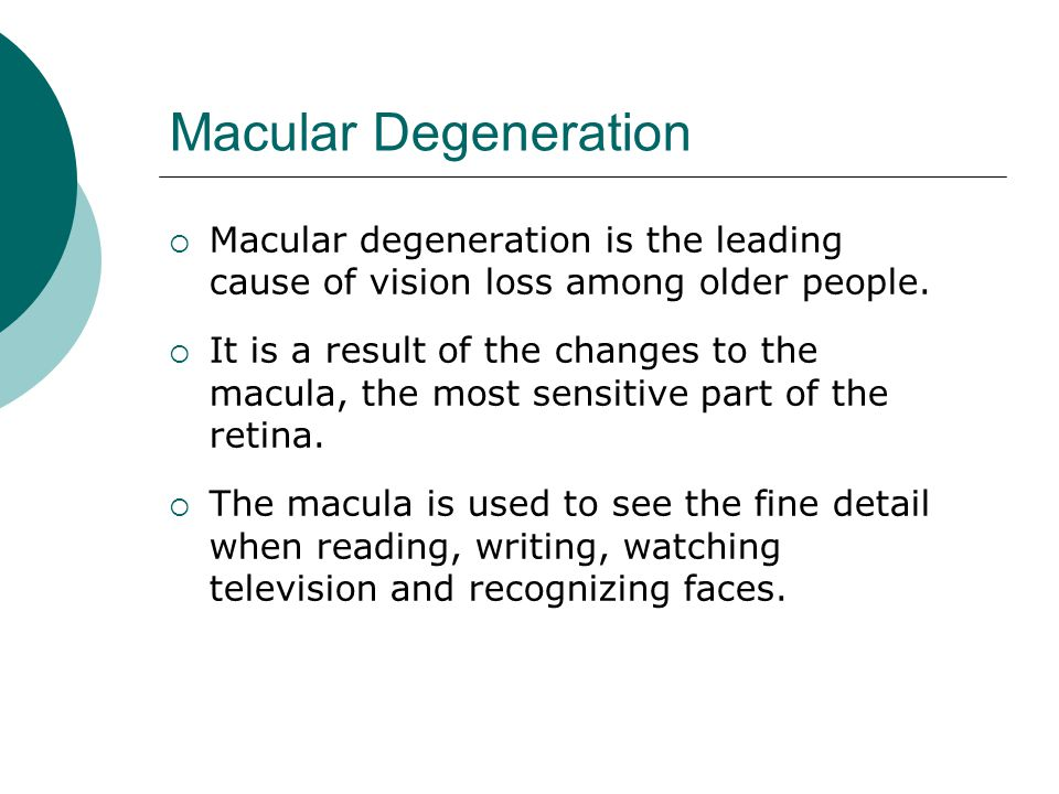 Macular Degeneration Macular degeneration is the leading cause of vision loss among older people.