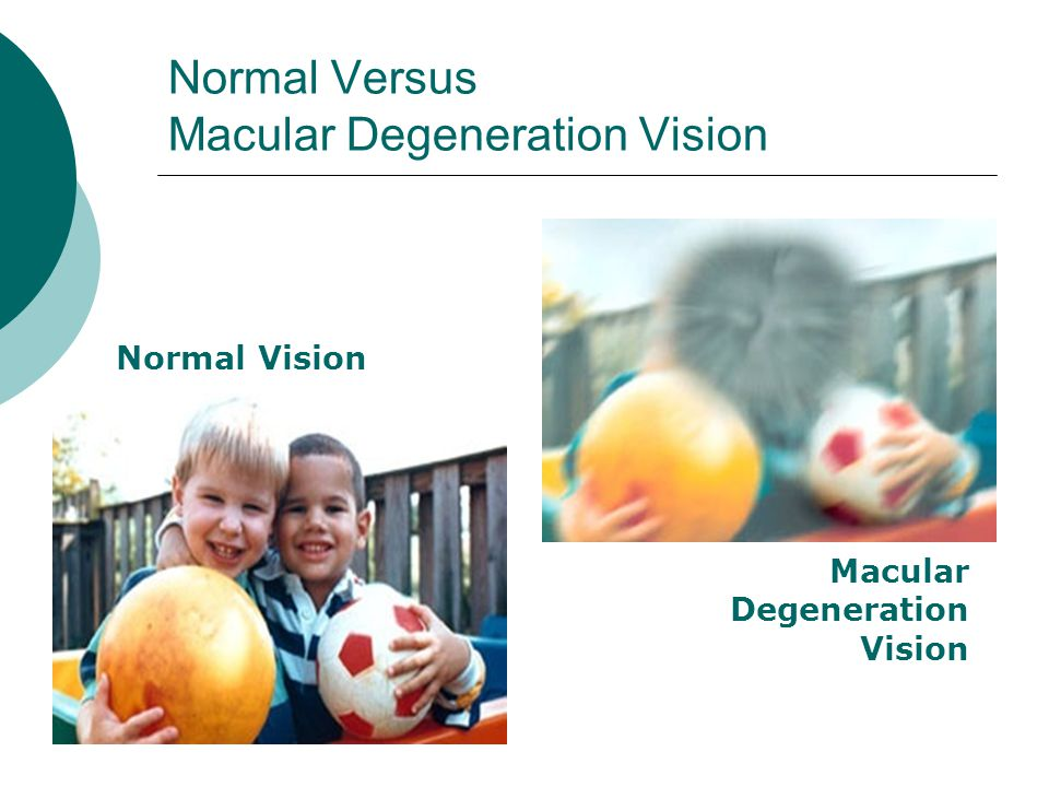 Normal Versus Macular Degeneration Vision