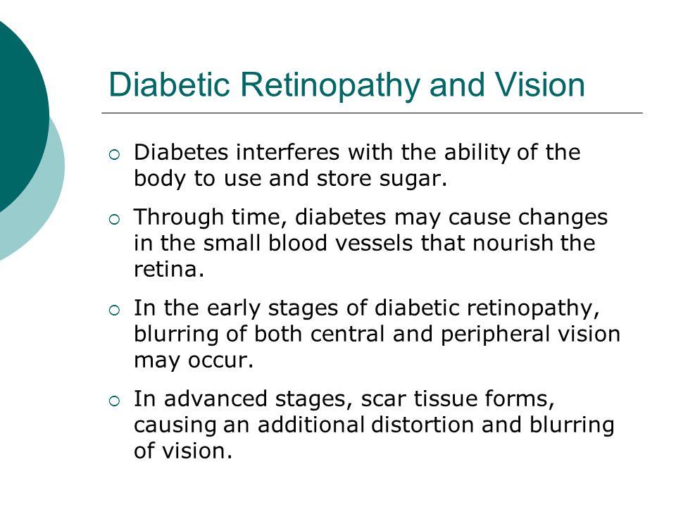 Diabetic Retinopathy and Vision