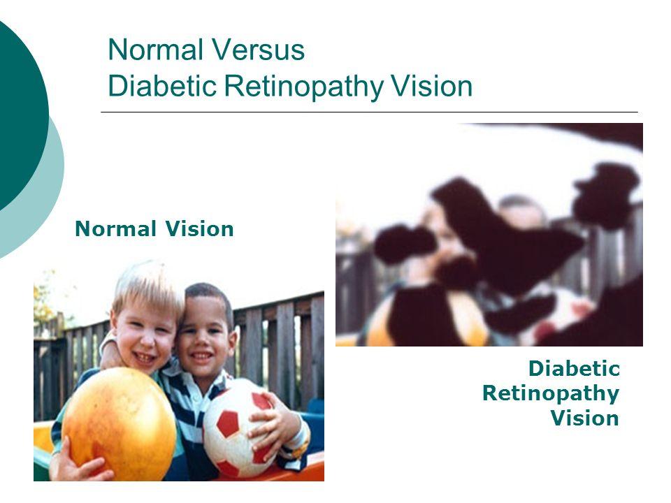 Normal Versus Diabetic Retinopathy Vision