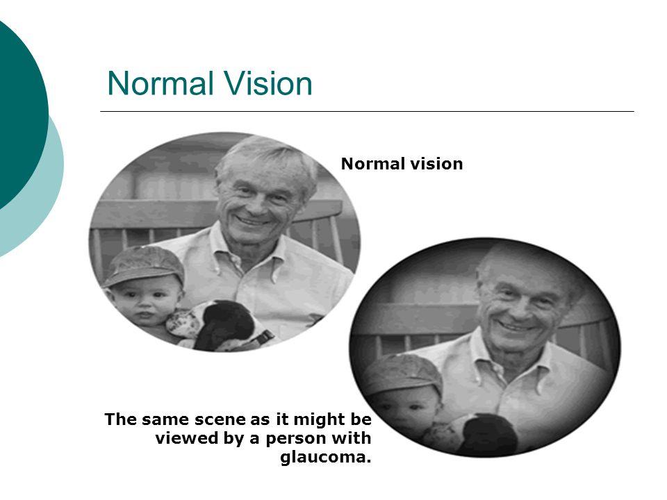 Normal Vision Normal vision