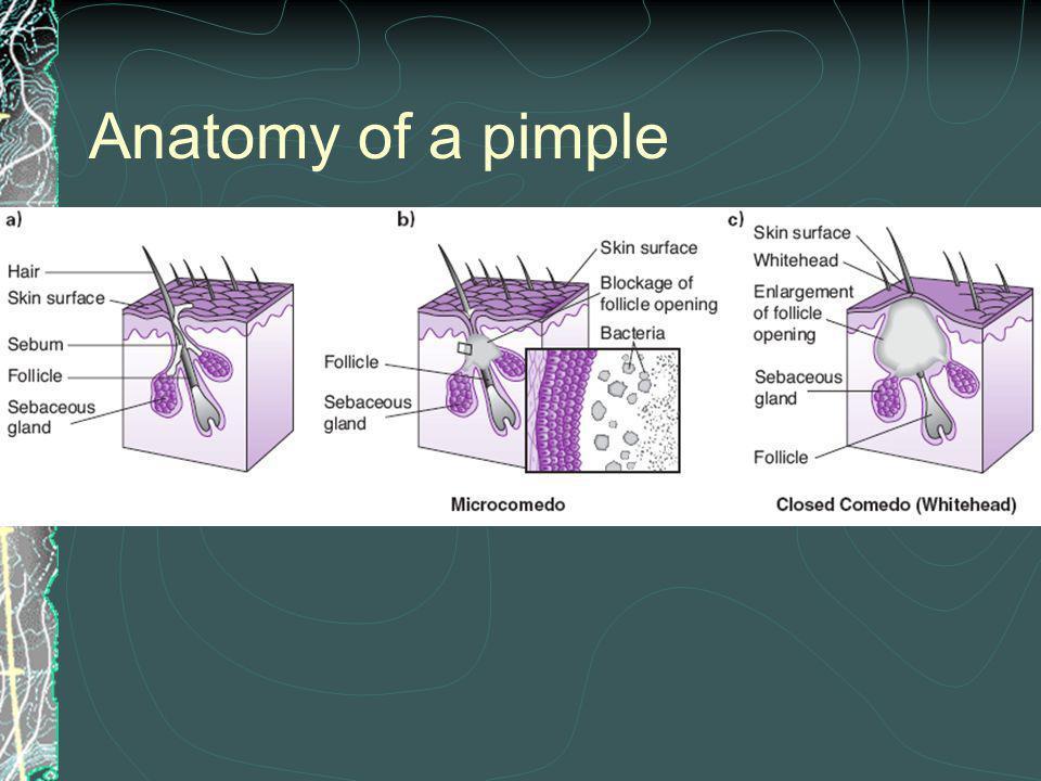 Anatomy of a pimple Figure 2.9 Anatomy of a pimple.