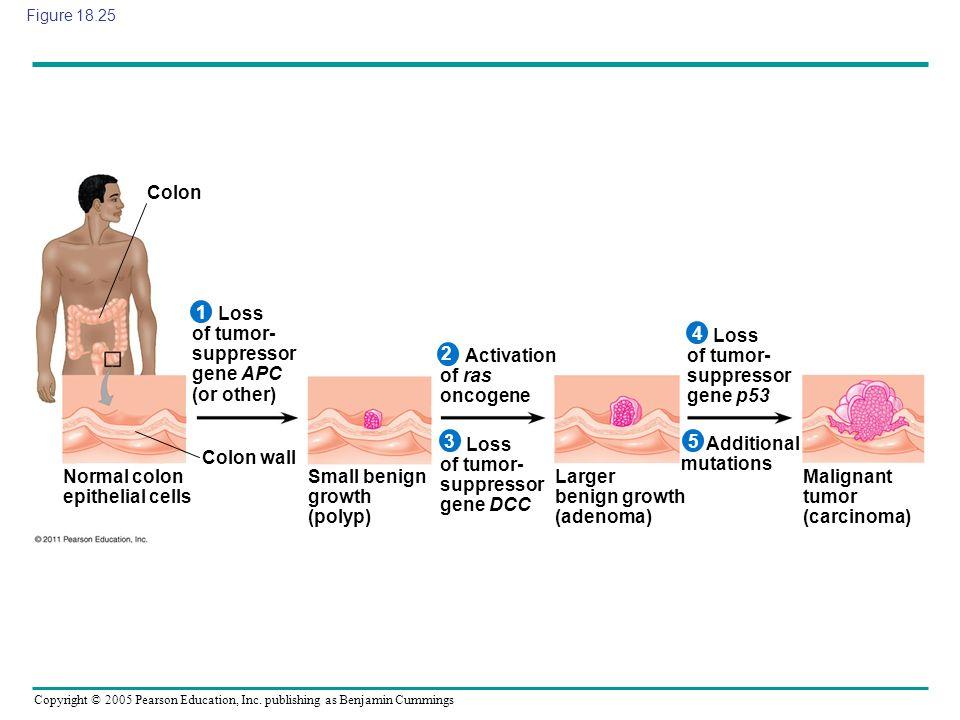 Loss of tumor- suppressor gene APC (or other) 4