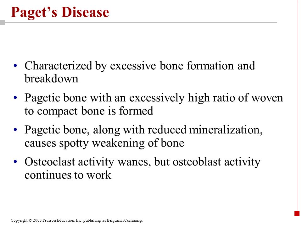Paget's Disease Characterized by excessive bone formation and breakdown.